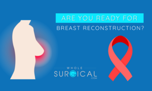 Are you ready for breast reconstruction?