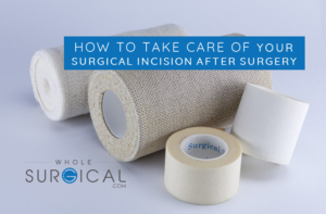 How to Take Care of Your Surgical Incision After Surgery